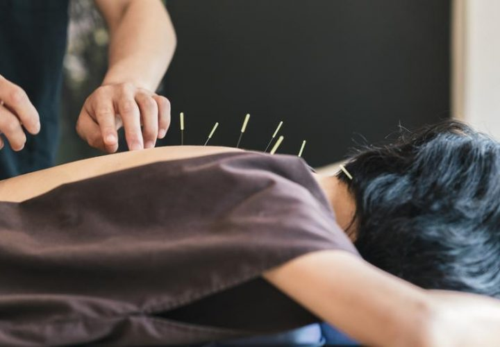 Various Acupuncture Techniques